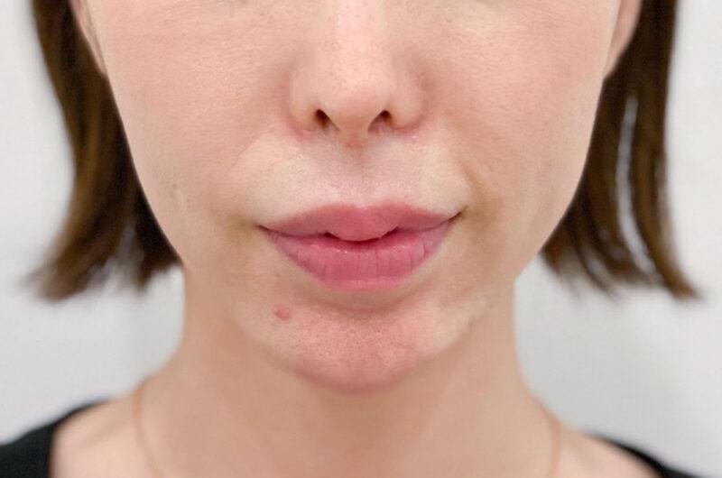 歯ぎしり・顎関節症治療 症例写真 AFTER