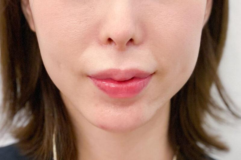 歯ぎしり・顎関節症治療 症例写真 BEFORE